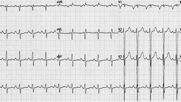 tanda sakit jantung